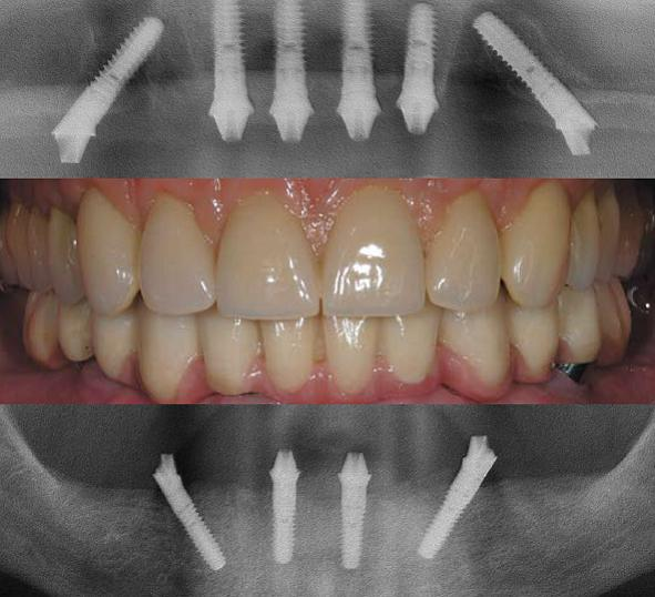 carga imediata para implante total