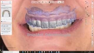prótese dentária de zirconia projetos
